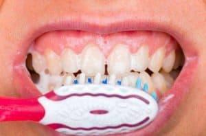 Tandvlees poetsen
