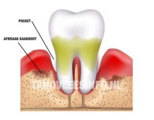 Vergevorderd parodontitis